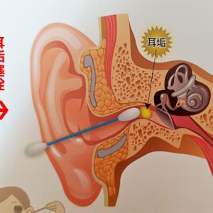 耳垢塞栓に注意!子どもの耳掃除の頻度やり方は?