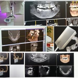 最新の歯科用CT複合機を導入してみて(2)