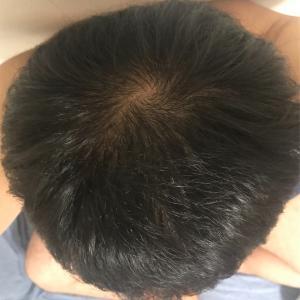 アンダローナチュラルズ アルガン幹細胞 薄毛システム 年齢に挑戦 1日目