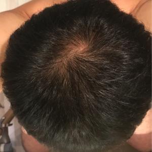アンダローナチュラルズ アルガン幹細胞 薄毛システム 年齢に挑戦 5日目