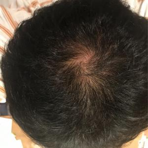 アンダローナチュラルズ アルガン幹細胞 薄毛システム 年齢に挑戦 6日目