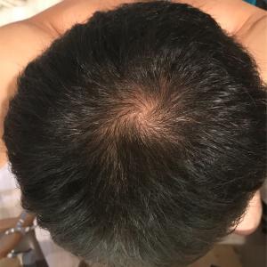 アンダローナチュラルズ アルガン幹細胞 薄毛システム 年齢に挑戦 11日目