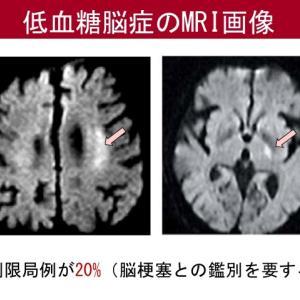 脳に3つの白いものは、過去に出来たものだと、、己の保身に走った未熟な主治医。。