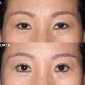 【眉毛下切開修正(傷跡修正含む)+下眼瞼下制+左)目頭切開修正(術後10カ月)】手術経過