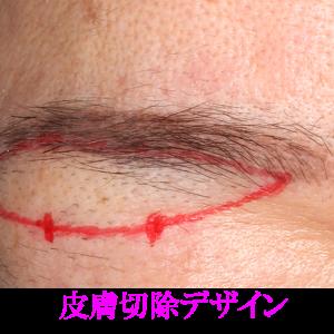 眉毛下切開の傷跡