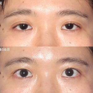 【眼瞼下垂手術(術後3カ月)】手術経過