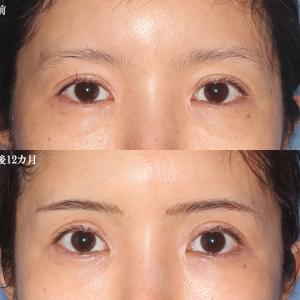 【眉毛下切開+クマの治療(下眼瞼裏ハムラ修正)(術後12カ月)】