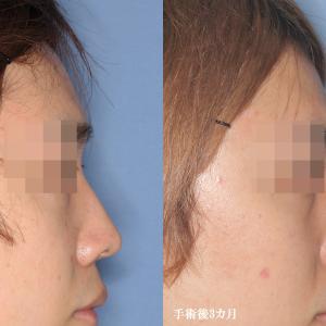 【鼻中隔延長術・鼻プロテーゼ(術後3カ月)】手術経過