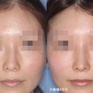 【鼻骨骨切り術(斜鼻矯正)・鼻中隔弯曲矯正+鼻中隔延長術(術後6カ月)】手術経過