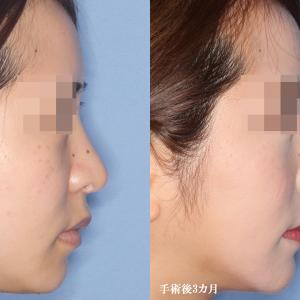 【鼻中隔延長修正・シリコンプロテーゼ+鼻翼縮小術(術後3カ月)】手術経過