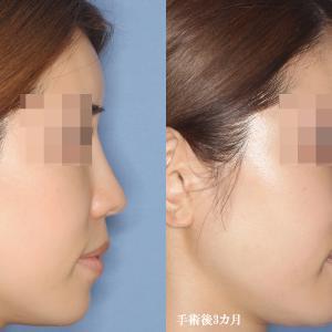 【鼻中隔延長術(再延長)・シリコンプロテーゼ入替(術後3カ月)】手術経過