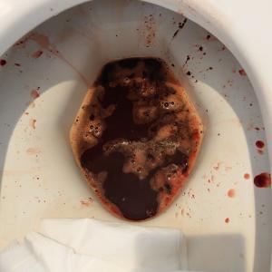 下血と血便