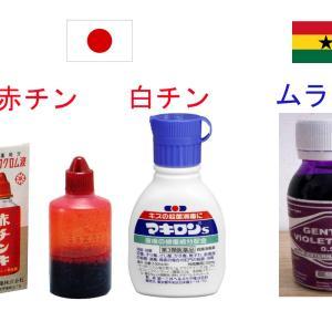 ガーナの【赤チン】は【紫色】!?