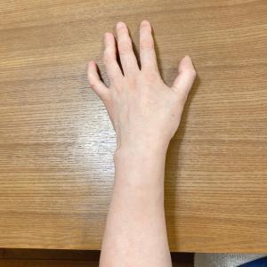片麻痺あるある /指の開き