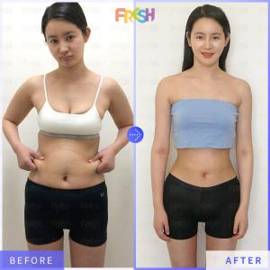 腹部・腰周りの脂肪吸引は今がチャンス!