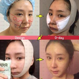 アキュージェット(顔脂肪吸引)はやっぱりフレッシュ整形外科!