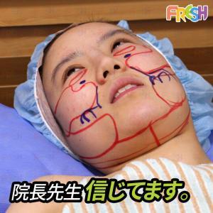 実際手術受けた患者様の症例!フレッシュのアキュージェットⅤ輪郭術(顔の脂肪吸引)。