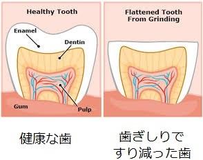 歯ぎしり、食いしばり、エラの張りを改善し、小顔効果もあるバイオレゾナンス(波動療法)のプログラム