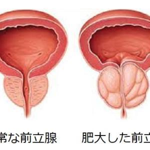 前立腺肥大症を予防し、排尿障害の改善を促進するバイオレゾナンス(波動療法)。