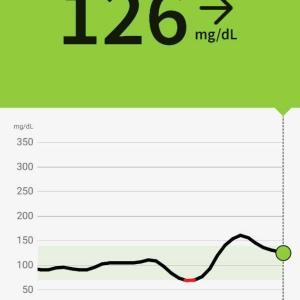 リブレリンクで血糖値測定