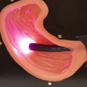 胃カメラ検査の結果