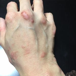 汗疱状湿疹(異汗性湿疹)を克服した女性の漢方症例
