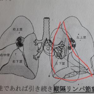 肺摘出手術入院2~手術日
