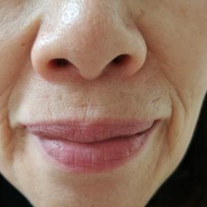 今、気になる。顔に出る老化のサイン。問題なのは目元ではなく口元と顎の線です!108円で何とかなるのか?
