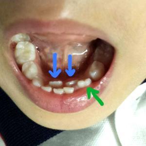 ④歯科衛生実地指導記録(歯医者さんに通おうの巻)