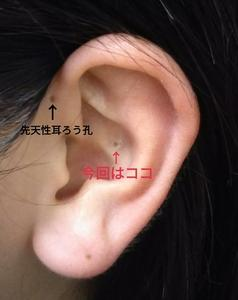 先天性耳瘻孔の感染
