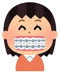 30代で歯列矯正をした詳細。理由・費用・結果と思うこと。【アラフィフミニマリスト】