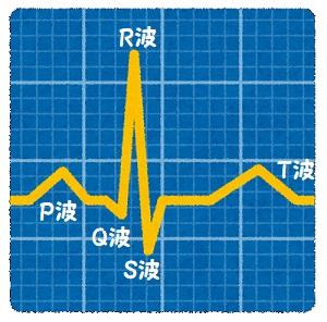 異常Q波・Qパターン、変わらず。【難病の友人】【心電図】【2019夏】