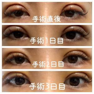眼瞼下垂の術後経過写真★