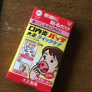 口内炎…どうにかして!【口内炎パッチで応急処置】
