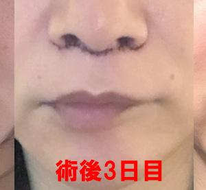 美容整形:人中短縮の手術(抜糸後)