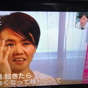 まつげ美容液の使い方注意ってテレビでやってた