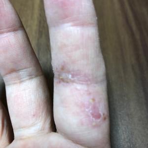 副作用 皮膚症状について(その後)