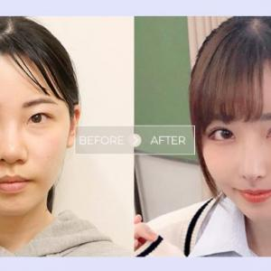 有名セクシー女優も整形手術を受けた☆ID病院外科パッケージ10月割引✨