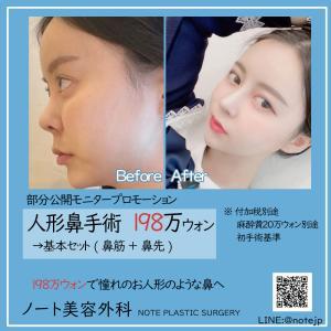 【198万ウォン人形鼻 大割引!】ノート美容外科 人形鼻手術モニタープロモーション開催