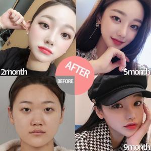 【お知らせ】ID美容外科の9月東京カウンセリング会!