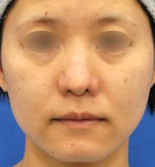他院様治療後の鼻中隔延長術ほか複合修正治療モニター様3ヶ月後