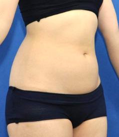 脂肪冷却痩身クールスカルプティング上下腹部の痩身モニター様
