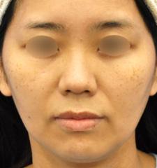 ナチュラル変化がご希望でした鼻中隔延長ほか、お鼻の複合治療3ヶ月後モニター様