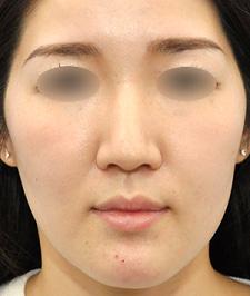 鼻尖形成、ハンプ骨切りほか、お鼻の複合治療モニター様3ヶ月後モニター様