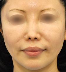 他院様治療後の鼻中隔延長、鼻孔縁形成ほか修正モニター様1ヶ月後