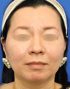 脂肪溶解注射+ウルトラセルQプラス小顔&タイトニング治療モニター様
