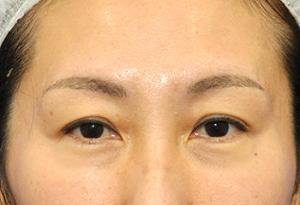 上瞼が軽やかに♪眉毛下皮膚切除法1ヶ月後モニター様