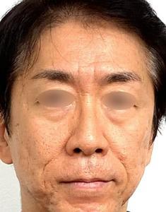 お顔のタイトニングRF治療+ナノファットモニター様3ヶ月後