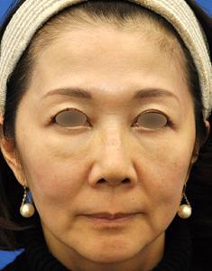 目の下のチンダル現象を改善してからお顔のリメイクモニター様、その後