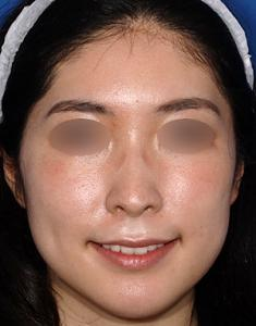 えらボトックス+ウルトラセルQプラス小顔治療モニター様